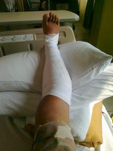 Mending patah hati yang enggak pakai resep dokter daripada patah kaki